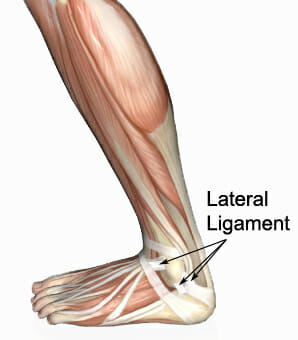sprained ankle - lateral ligaments