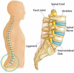 lumbar anatomy - slipped discs and herniation