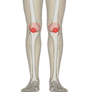 patellofemoral pain knee cap pain exercises