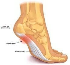 Plantar fasciitis treatment and exercises