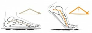 Windlass mechanism, heel pain - self treatment and exercises