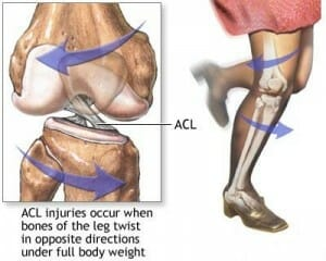 acl mechanism