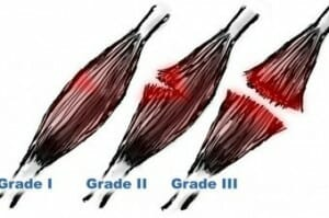 Hamstring muscle tear grades - heal fast and strong