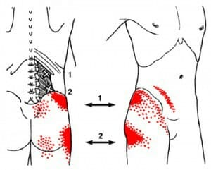 QL release trigger points
