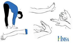 beighton-hypermobility-score