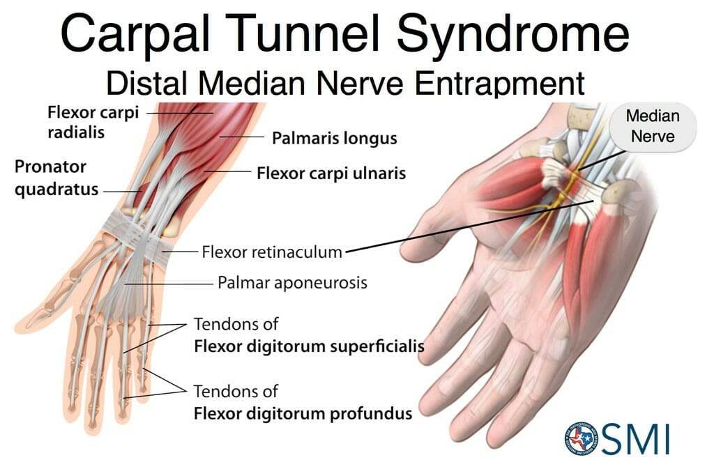 carpal tunnel symptoms - 1024×683